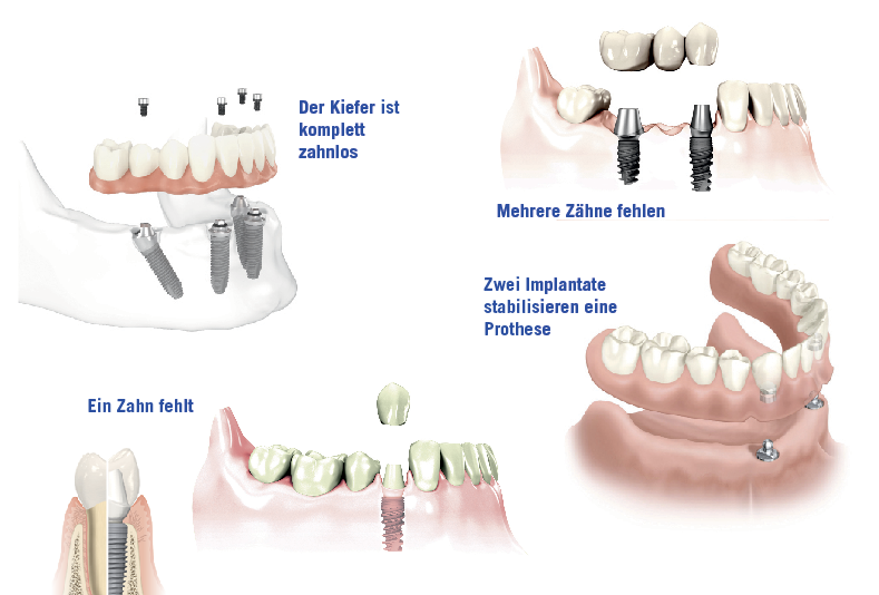 Einsatz von Implantaten