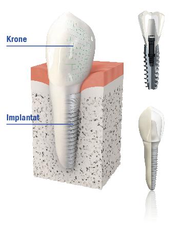 Künstliche Zahnwurzeln